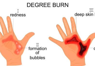 What are my Legal Rights if I Sustain a Serious Burn Injury?